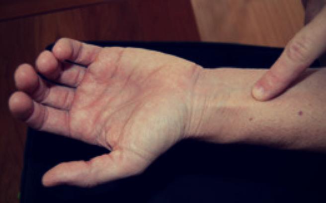 Akupunkturpunktet pericardium 6 har en god effekt på hjertet. Pericardium betyder hjertesæk