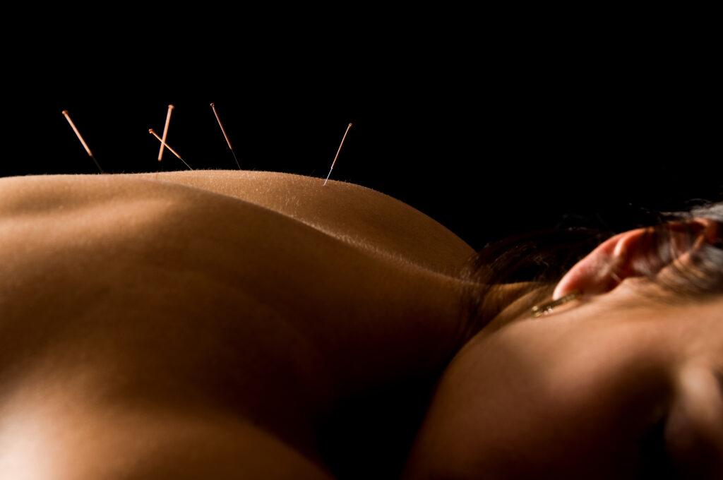 Akupunktur kan styrke kroppen op under en kræftdiagnose