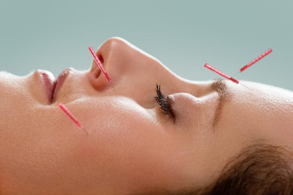 Kosmetisk ansigtsakupunktur er populært i USA. Nu er det kommet til Danmark.